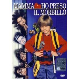 MAMMA HO PRESO IL MORBILLO